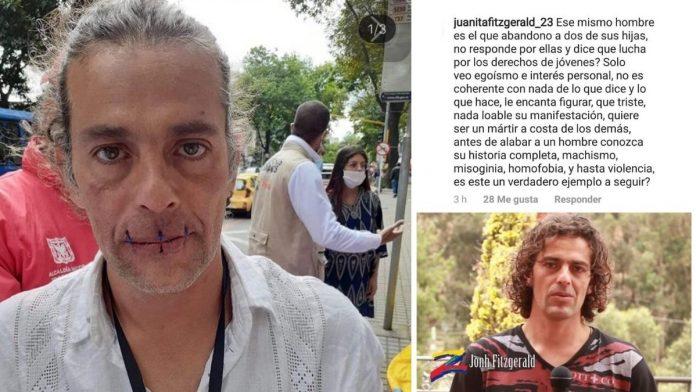 Jhon Fitzgerald, el artista que lleva más de 72 horas de huelga de hambre, ¿es un fraude?