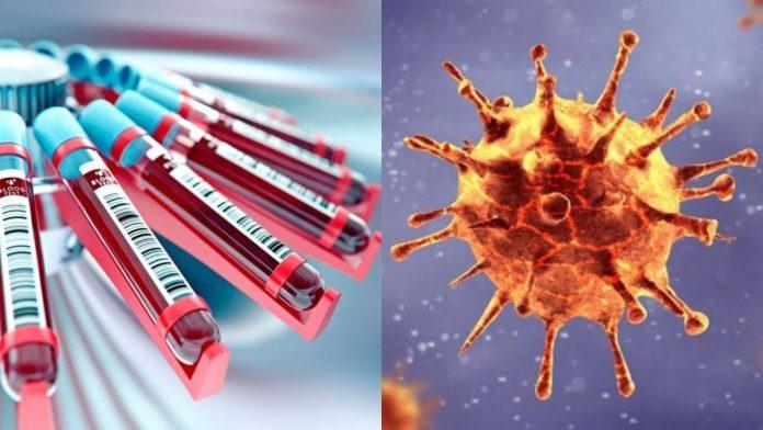 Grupo sanguíneo influye en riesgo de contraer Covid-19