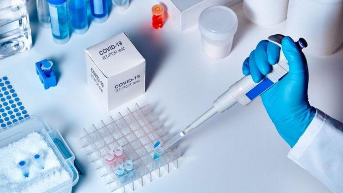 Prueba PCR de Covid-19